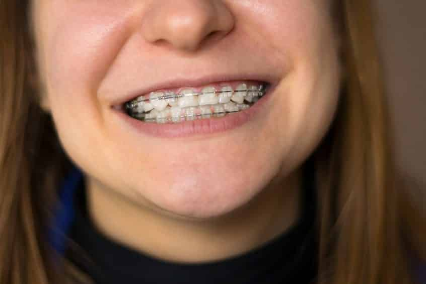 First Orthodontist Appointment Questions Dr. Hunter Harrison