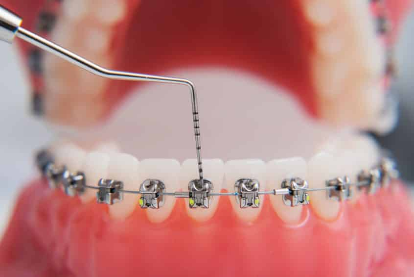 How Do Braces Work Southern Orthodontic Specialists Collierville Southaven