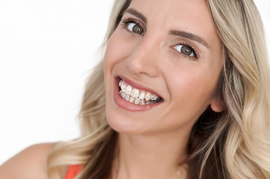 Do Braces Move Your Teeth Everyday Southern Orthodontic Specialiists Collierville Southaven