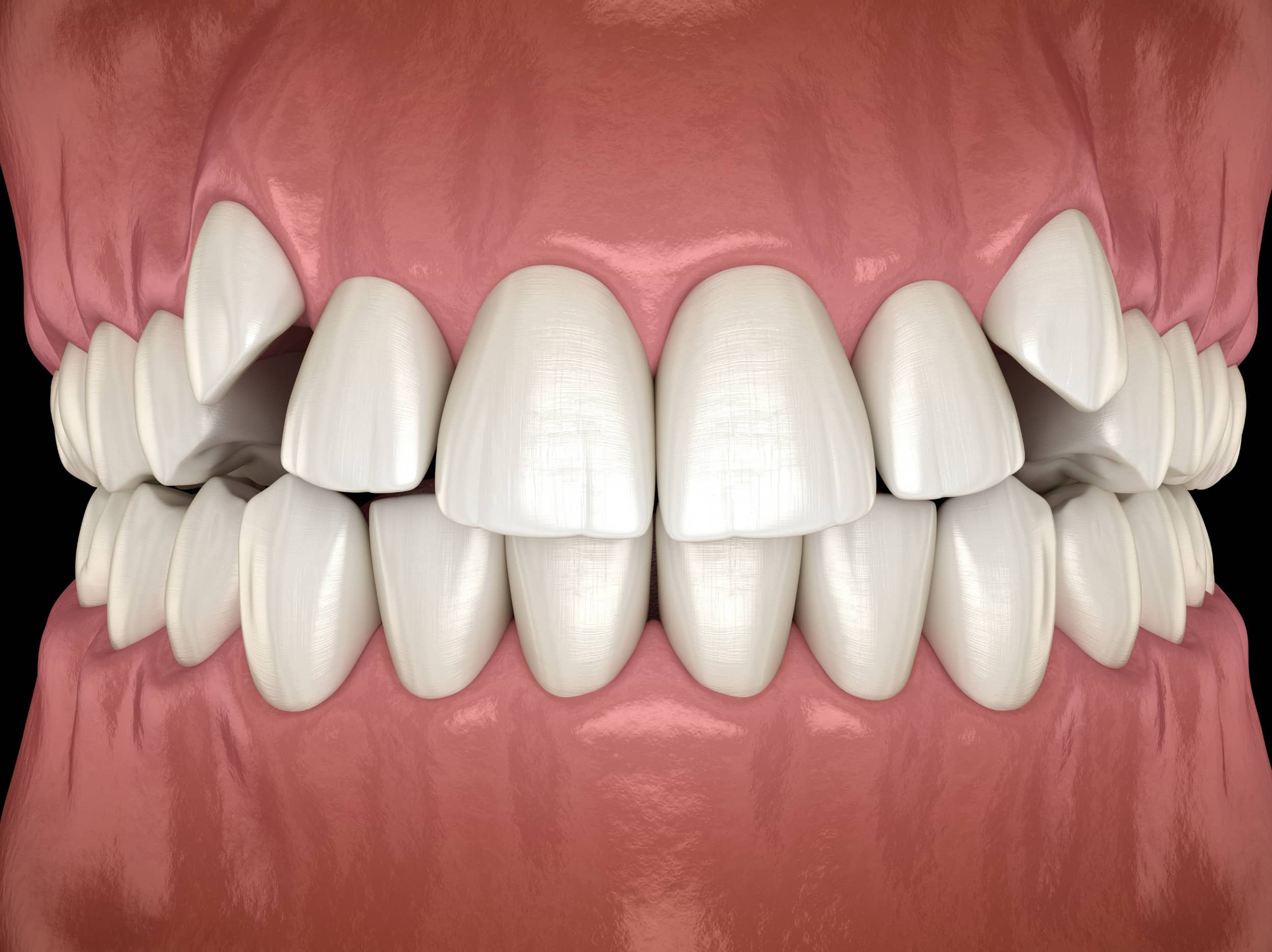 "Featured image for ""Can braces fix teeth that are overcrowded?"""