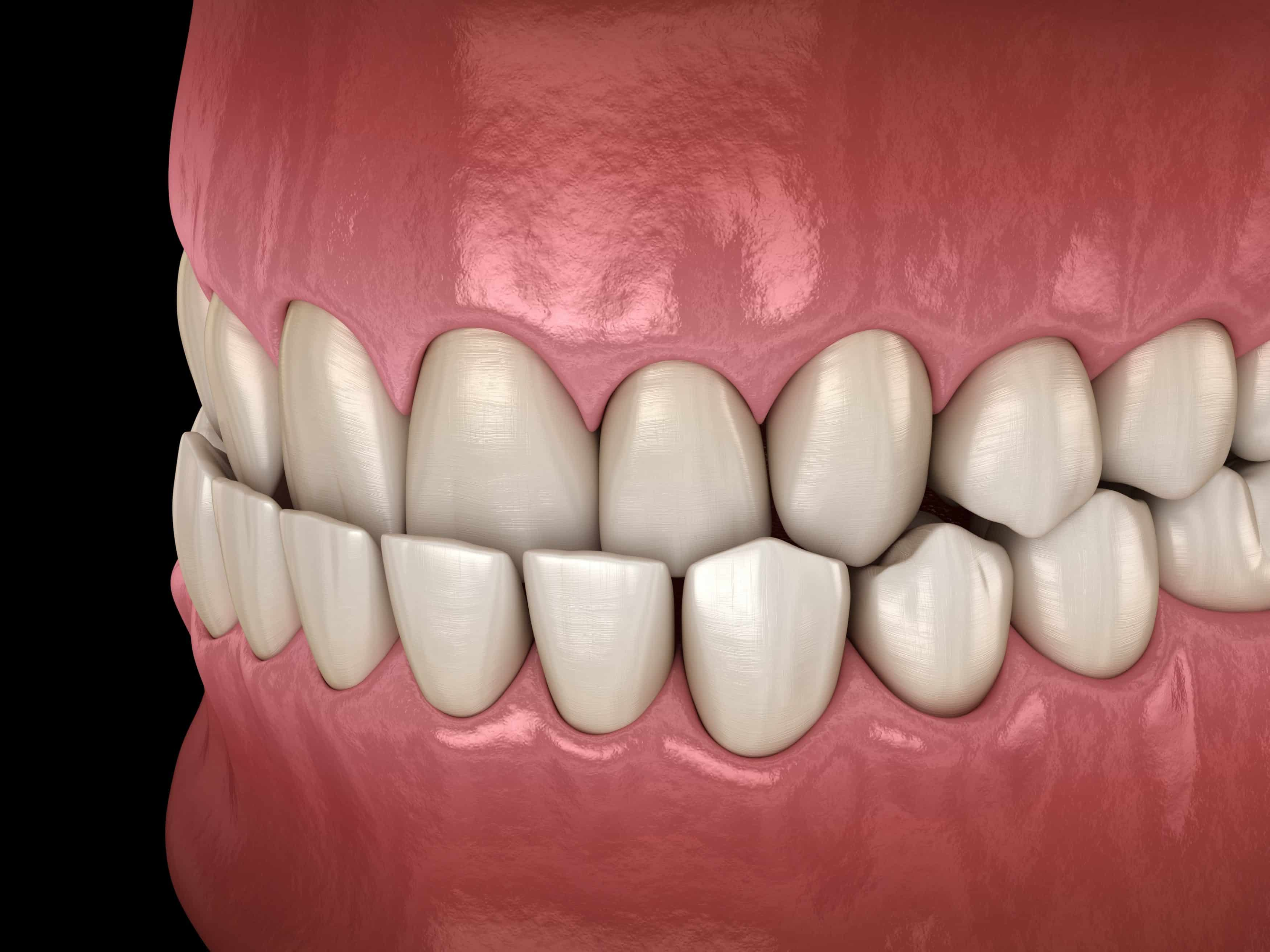 """Featured image for """"What is an underbite?"""""""
